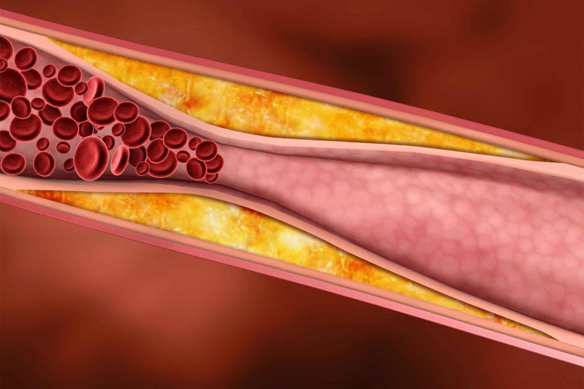colesterol-ateroma-1200x800.jpg