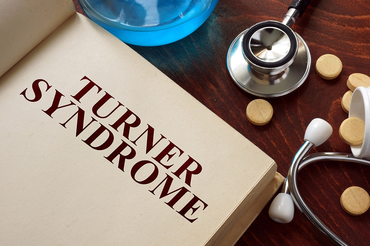 Turner-syndrome.jpg